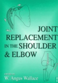 Joint Replacement in the Shoulder & Elbow